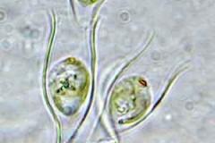 Becherbäumchen - Dinobryon sp.