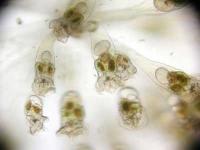 Rädertierkolonie - Conochilus sp.
